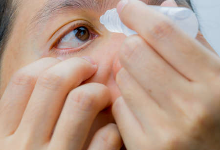Adult Asian woman applying eye drops in her brown eyes. Eye care concept