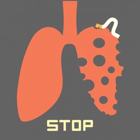 lungenkrebs: Rauchen aufh?ren Illustration