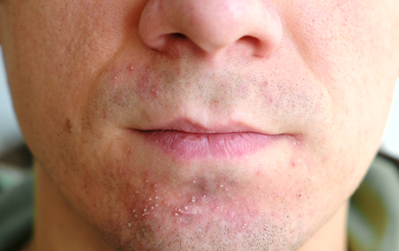 Skin irritation after shaving on mans skin. Closeup nose and lips.
