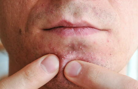Skin irritation after shaving. Mans hands squeeze pimples on the chin.