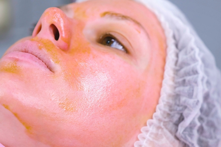 Chemical peeling o the womans face. Cleaning the face skin and lightening freckles skin. Close-up face. Side view.