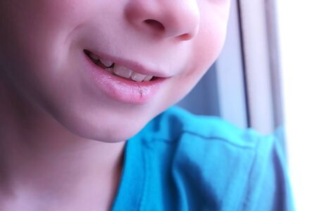 Little cut on boys lip. Smiling child boy with dry cracked lips, mouth closeup. Dehydrate process.