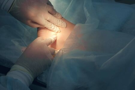 Surgeon man making surgery of removal ankle hygroma on leg in hospital in operating room, hands closeup. Doctor squeezing articular fluid out through small incision. Surgical treatment of hygroma. Stock Photo