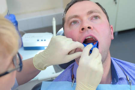Dentist puts mouth guard with fluoride gel in man mouth in stomatology clinic. Procedure for fluoridation of teeth in dentistry. Stomatologist hygienists making fluorination teeth for patient.