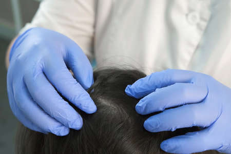 Doctor trichologist in gloves is examining woman skin on head in cosmetology clinic, closeup view. Cosmetologist preparing to make treatment procedure to patient against dandruff in the hair.