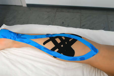 Kinesiology tapes on womans leg to fix the calf muscle, closeup view. Using of tapes in medicine for fixation of muscles joints. Recovery and rehabilitation after an injury in sport or life. 스톡 콘텐츠
