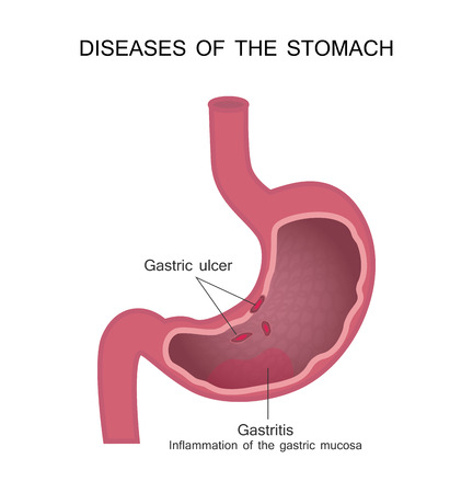 Peptic Ulcer Disease Pud Vector Illustration Of Diagram Of