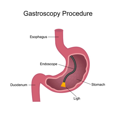 Gastroscopy Procedure Diagram Ilustrace