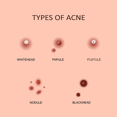 Soorten acne en puistjes Vector Illustratie