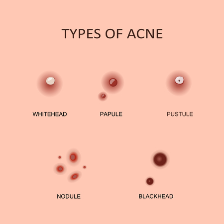 Types of Acne and Pimples 向量圖像