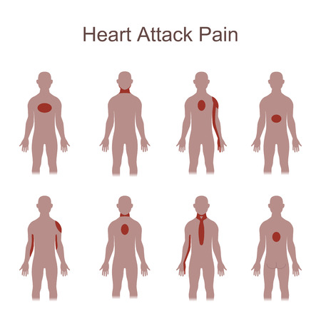 Heart Attack Pain Location Royalty Free Cliparts, Vectors, And Stock ...