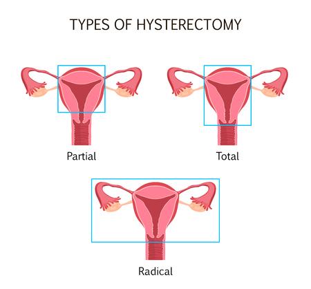 Tipos de histerectomía Foto de archivo - 82857257