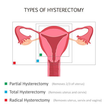 子宮摘出術の種類  イラスト・ベクター素材