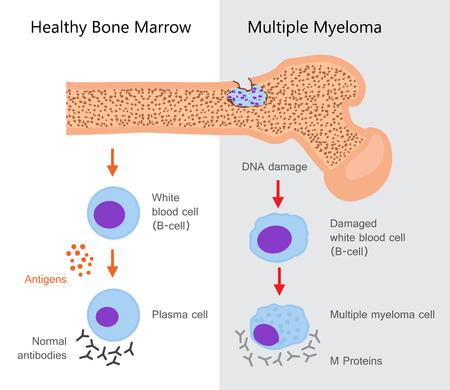 Multiple myeloma diagram.