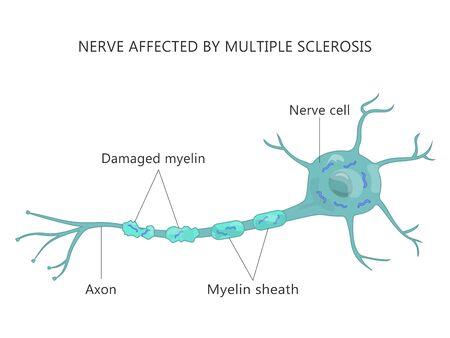 Multiple Sclerosis Failure Myelin Cells Autoimmune Disease Illustration