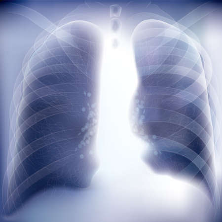Chest image,Realistic x-ray shots.Image uses layer overlay effects.