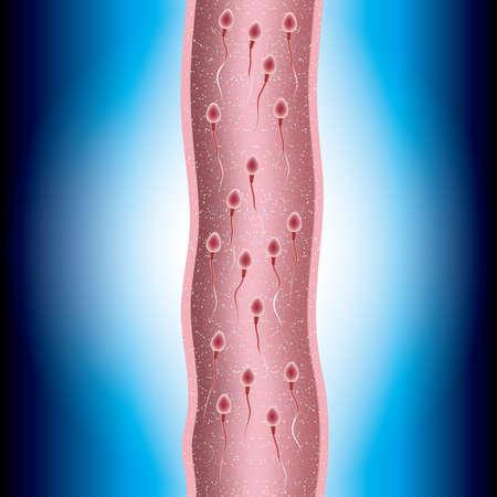 Fertilization process design, sperm and ovum combination, many sperm scramble ovum.