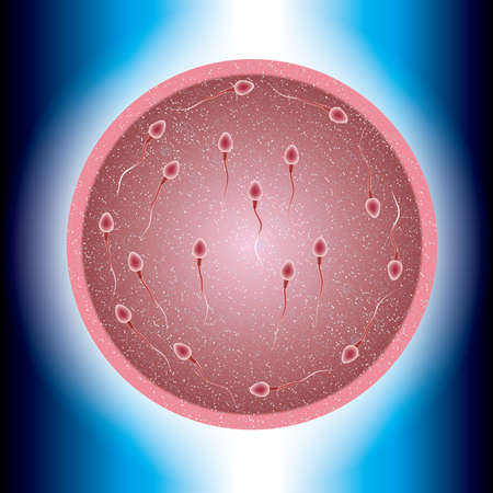 Fertilization process design, sperm and ovum combination, many sperm scramble ovum.