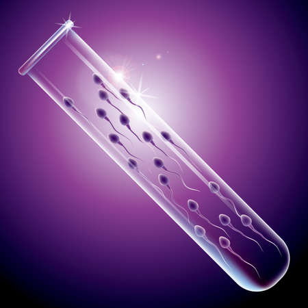Sperm detection concept design, sperm in a test tube. The background is purple. 일러스트