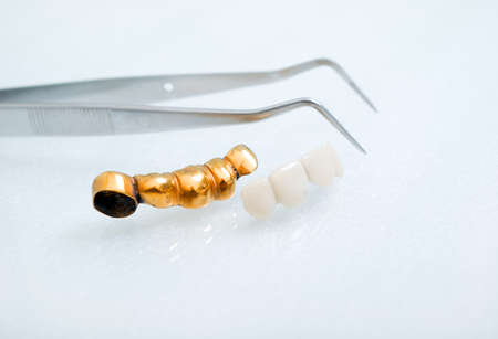 teeth mold and prosthetic devices. Stock fotó