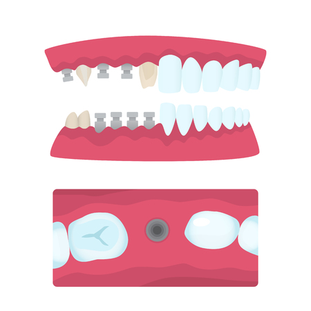 Set of dental crowns and implantation prosthodontics elements and tools. Jaw type. Snapshot of mouth. Vector flat illustration.
