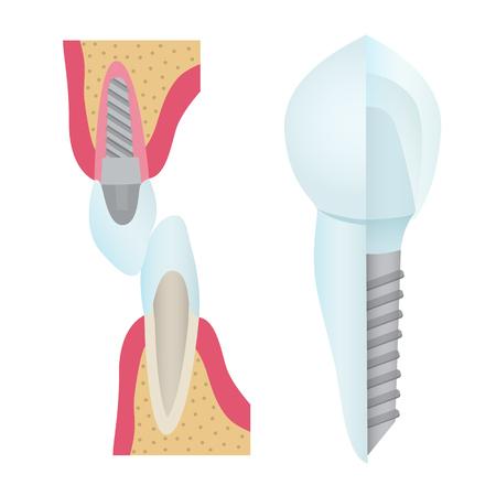 Set of dental crowns and implantation illustration.