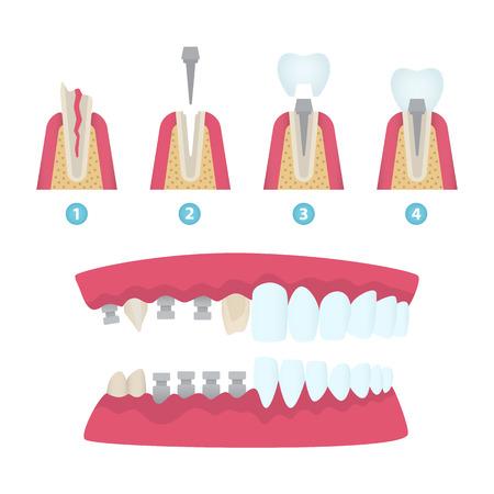 Set of dental crowns and implantation elements