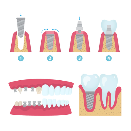 Set of dental crowns and implantation prosthodontics elements and tools. Vector flat illustration.