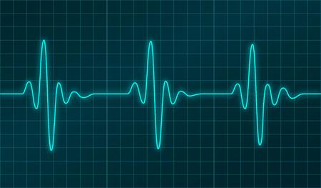 oscillation: El coraz�n late cardiograma u oscilaci�n gr�fica de la se�al en la pantalla electr�nica. Ilustraci�n del vector. Resumen cardiolog�a y f�sica m�dica concepto de tecnolog�a.