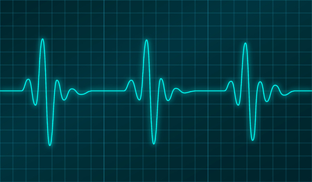 vector medical: Heart beats cardiogram or oscillation signal graph on electronic display. Vector illustration. Abstract cardiology and medical physics technology concept. Illustration