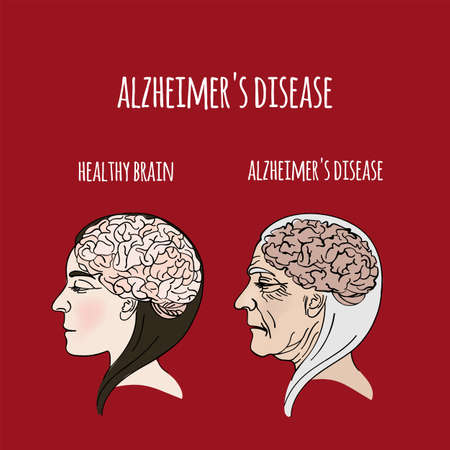 ALZHEIMER DISEASE Dementia Memory Loss Brain Damage Medicine Health Danger Treatment Therapy Banner Poster Vector Illustration