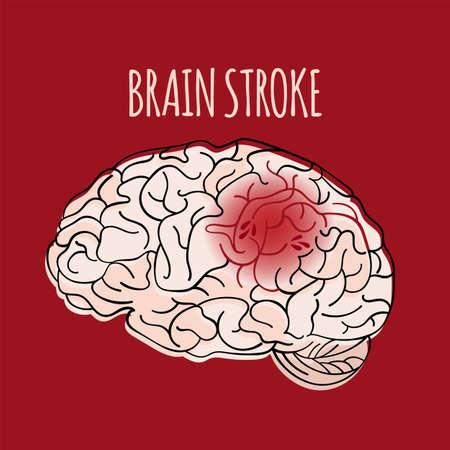 BRAIN STROKE Insult Apoplexy Medicine Health Danger Treatment Therapy Banner Poster Vector Illustration Illustration