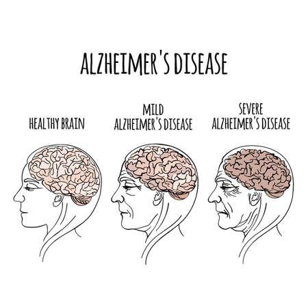 DEMENTIA Enfermedad de Alzheimer Pérdida de memoria Daño cerebral Medicina Tratamiento de salud Terapia Banner Cartel Ilustración vectorial