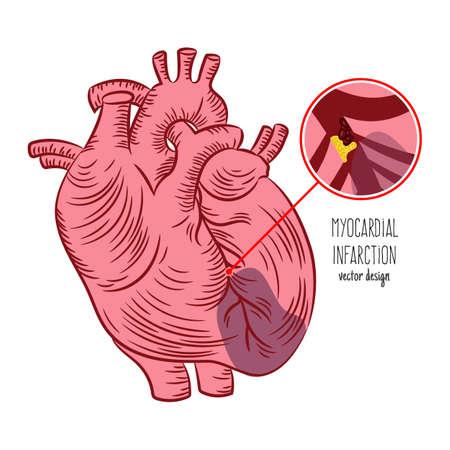 ATHEROSCLEROSIS Chronic Disease Medicine Education Diagram Vector Scheme Human Hand Draw Vector Illustration