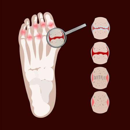 ARTHRITIS LEG Rheumatoid Chronic Disease Medicine Education Diagram Vector Scheme Human Hand Draw Vector Illustration Set Ilustrace