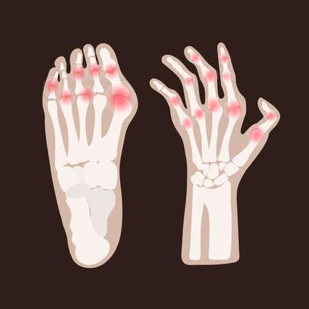 HAND LEG ARTHRITIS Rheumatoid Chronic Disease Medicine Education Diagram Vector Scheme Human Hand Draw Vector Illustration Vector Illustration