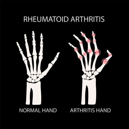 RHEUMATOID ARTHRITIS BLACK Chronic Disease Medicine Education Diagram Vector Scheme Human Hand Draw Vector Illustration Vector Illustration
