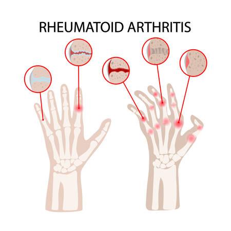 La polyarthrite rhumatoïde maladie chronique médecine éducation schéma vecteur schéma main humaine dessiner illustration vectorielle Vecteurs
