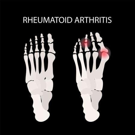 RHEUMATOID ARTHRITIS LEG Chronic Disease Medicine Education Diagram Vector Scheme Human Hand Draw Vector Illustration