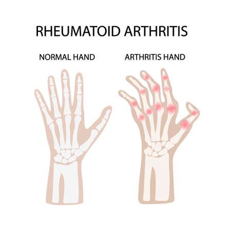 RHEUMATOID ARTHRITIS WHITE Chronic Disease Medicine Education Diagram Vector Scheme Human Hand Draw Vector Illustration