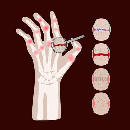 RHEUMATOID DISEASE Arthritis Chronic Illness Medicine Education Diagram Vector Scheme Human Hand Draw Vector Illustration Ilustrace
