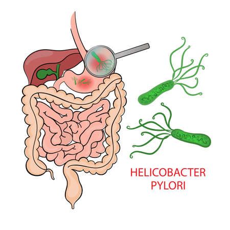 HELICOBACTER PYLORI Medicine Education Diagram Vector Scheme Human Illness Vector Illustration Set