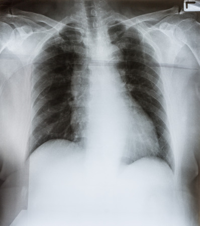 X-Ray Image Of Human male Chest photo