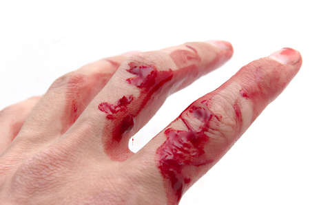 contusion: Hand & blood