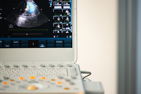 Screen, control panel and keyboard of modern ultrasound scanner after cardiac examination.