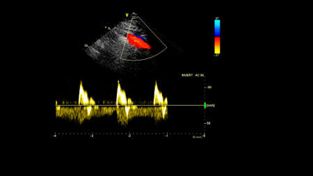 Image of the heart during transesophageal ultrasound with Doppler mode. Stock Photo