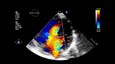 Image of the heart during transesophageal ultrasound with Doppler mode.