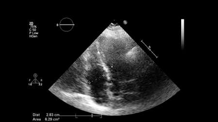 Image of the heart in gray-scale mode during transesophageal ultrasound. Standard-Bild