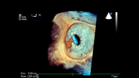 3D image of the heart during transesophageal ultrasound.