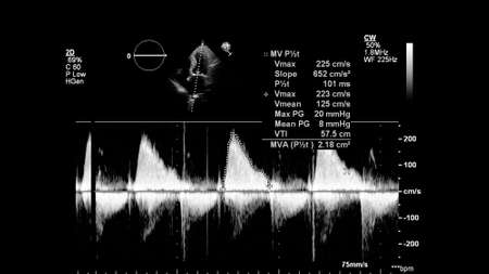 Image of the heart in gray-scale mode during transesophageal ultrasound. 免版税图像